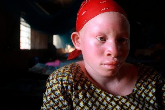 Tanzanie vendre niece albinos magie noire