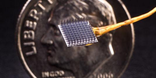 cerveau souvenirs implant