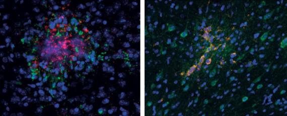 nouveau traitement maladie Alzheimer ultrasons restaure totalement mémoire