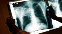 Au moins 1.555 réfugiés atteints de tuberculose active sur le sol des Etats-Unis–et en France?