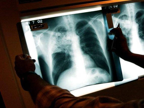 Réfugiés tuberculose Etats Unis