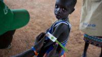 Au Soudan du Sud, un humanitaire mesure le bras de ce jeune garçon afin de savoir s'il souffre de malnutrition.