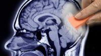 Guérir le stress post-traumatique par l'effacement des souvenirs