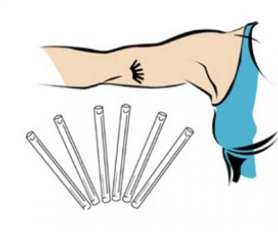 Etats Unis école élève implant contraceptif