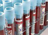 La Californie requalifie à la baisse la contamination délibérée d'un partenaire par le virus HIV