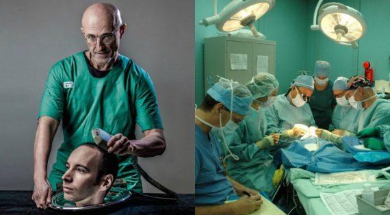 Transplantation tête homme Chine