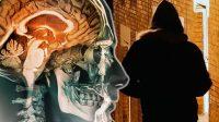 Empêcher les prédateurs sexuels d'agir grâce à une micropuce implantée dans le cerveau: des chercheurs y croient