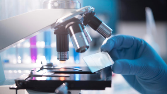 mini tumeurs tester traitements anticancéreux vitro