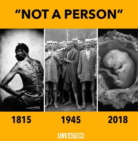 Pologne Amnesty International avortements eugéniques