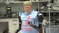 Etats-Unis: un premier homme amputé des deux bras équipé de bras bioniques