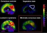 Surprise: un patient réveillé d'un état de conscience minimale grâce à un anxiolytique