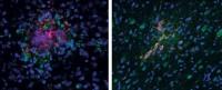 Un nouveau traitement de la maladie d'Alzheimer par ultrasons restaure totalement la mémoire