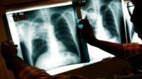 """Les migrants en provenance de la Corne d'Afrique présentent une incidence inquiétante de la tuberculose multirésistante (""""The Lancet"""")"""