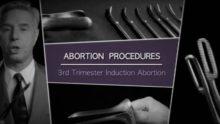 Un professeur de Sacramento, Californie, en difficulté pour avoir montré des vidéos d'avortement