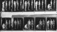 Le programme d'eugénisme japonais a forcé la stérilisation et l'avortement de dizaines de millier de personnes