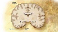 Une première mondiale pour la maladie d'Alzheimer: des scientifiques découvrent comment détruire les particules toxiques dans le cerveau