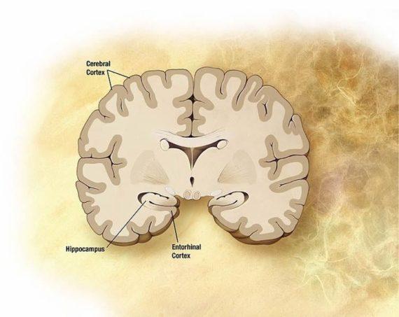 maladie Alzheimer toxiques cerveau